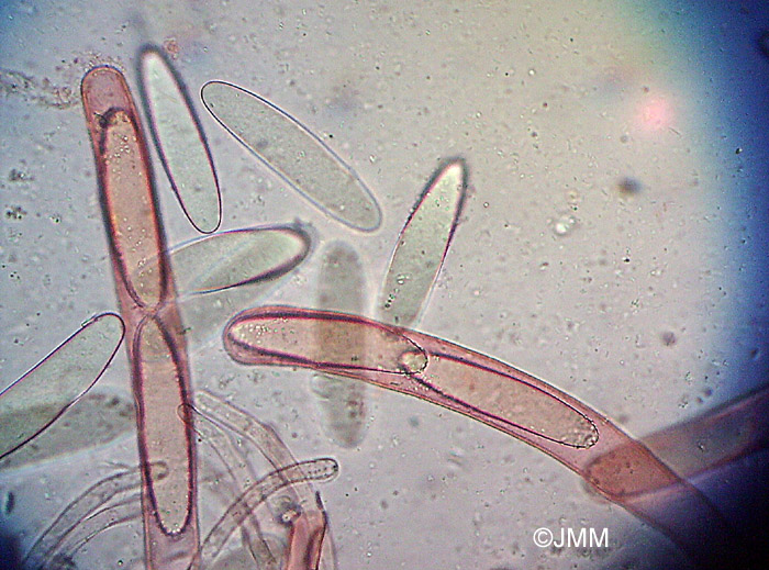 Ptychoverpa bohemica : Asques et ascospores